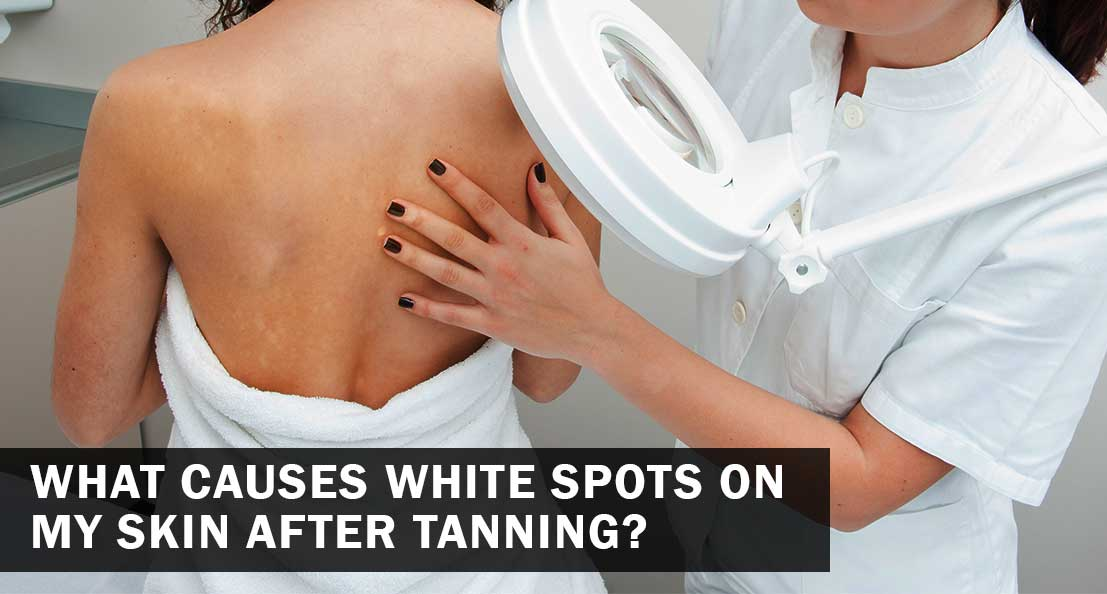 white spot on skin after tanning