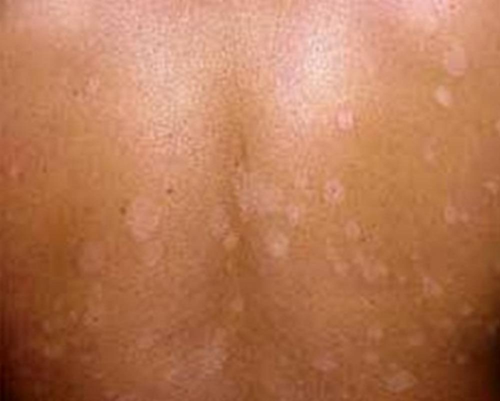 Post-Inflammatory Hypopigmentation