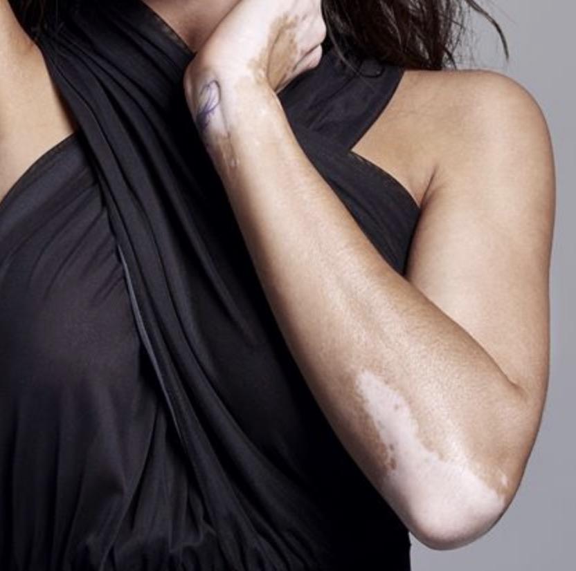 woman with Lichen Sclerosus