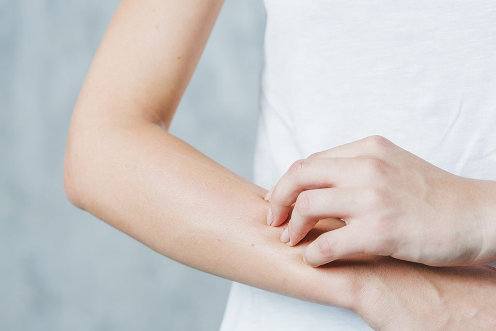 Closeup of woman scratching her lower arm